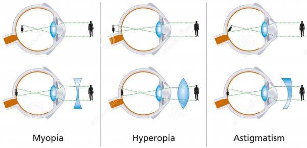 οφθαλμιατρος πυλαια - διαθλαστικές ανωμαλίες