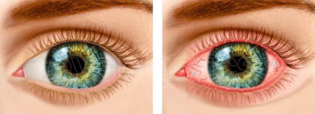 οφθαλμιατρος χαριλαου - βλεφαρίτιδα