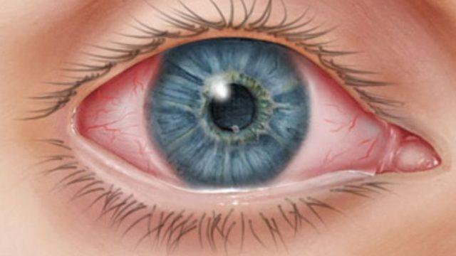 οφθαλμιατρος χαριλαου - επιπεφυκίτιδα