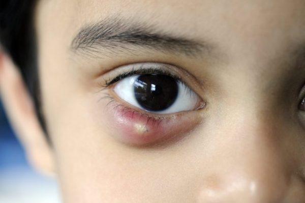 οφθαλμιατρος χαριλαου - χαλάζιο κριθή