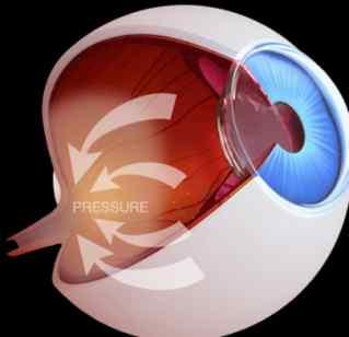 οφθαλμιατρος καλαμαρια θεσσαλονικης-γλαυκωμα