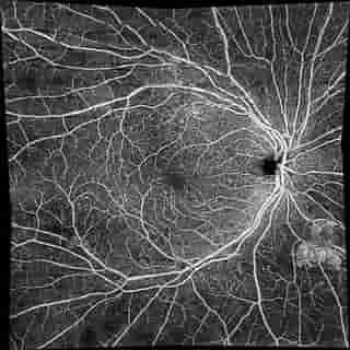 οφθαλμιατρος θεσσαλονικη oct-αγγειογραφια
